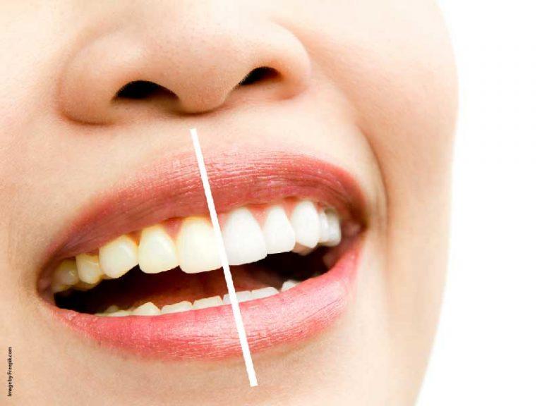 Karang pada gigi dan warna yang menguning