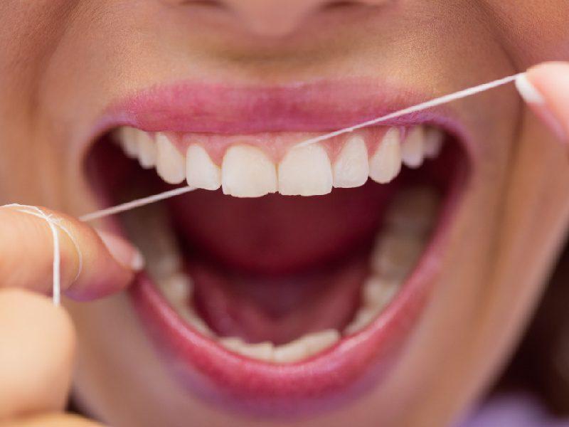 Benang Gigi Dental Floss